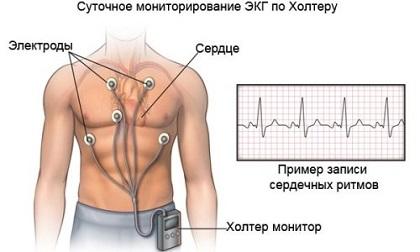 Холтер: услуги мониторинга сердца в медицинских центрах